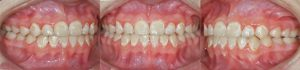 decalcification-orthodontie-sherbrooke-113152-KM