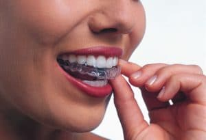 woman inserting clear aligner into moiuth